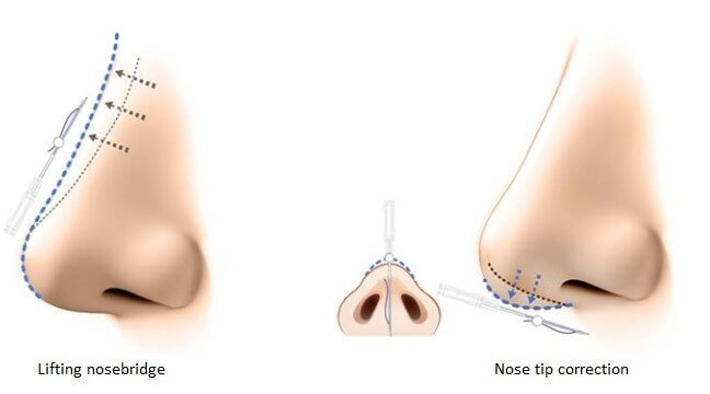 How is nose thread lift done