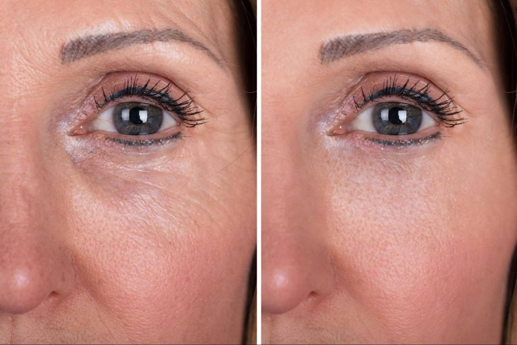 Invasive vs. Non-Surgical Brow Lifts