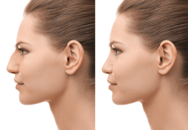 Yastrid Nose Thread Before After 2