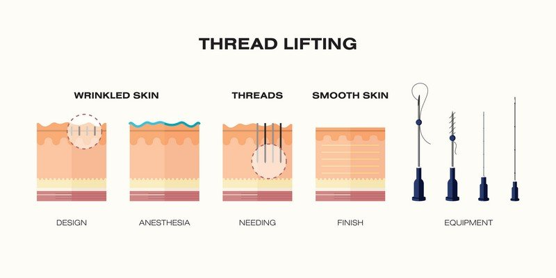 thread lift mini facelift